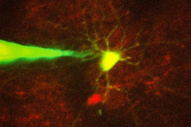 MIT-Neuron-Recording-1_0